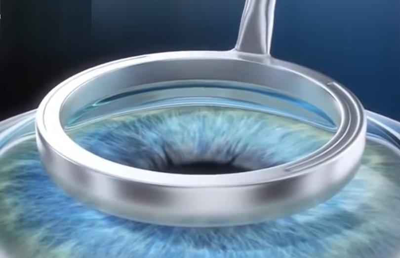 lasek ooglaseren
