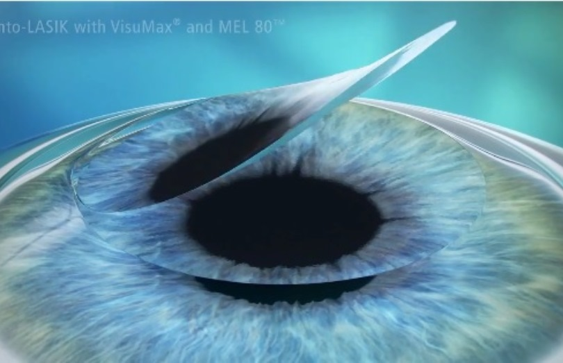 lasik ooglaseren