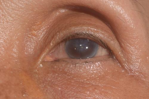 cataract operatie mislukt corneaal oedeem hoornvlies